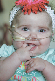 Aavah Mangus was born with a very rare medical disorder called heterotaxy that sometimes causes certain organs in the body to form on the opposite side of where they would normally form and often causes heart problems. Patti Carpenter photo